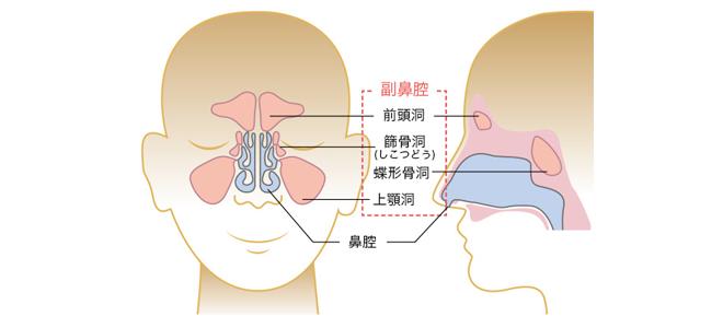 副鼻腔炎-たかはし耳鼻科より